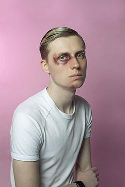 Lawrence Tan Bruised #1